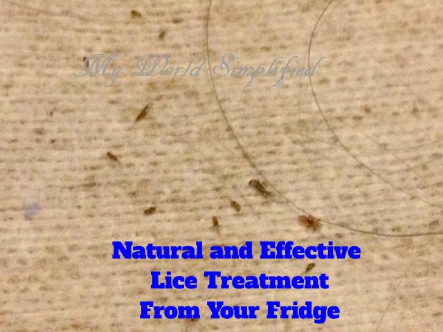 CDC  Lice  Head Lice  Treatment